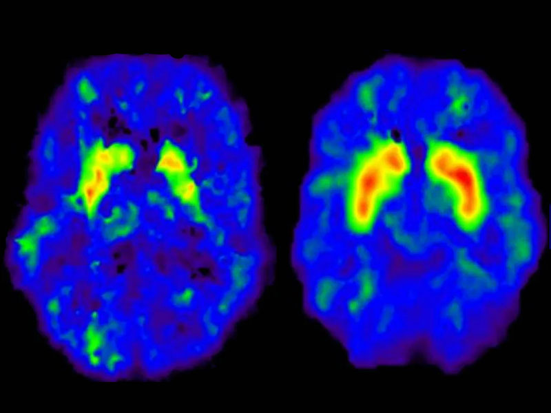 The brain with dopamine activated zones thanks to gambling